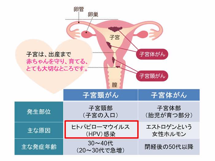 子宮は、出産まで赤ちゃんを守り、育てる、とても大切なところです。