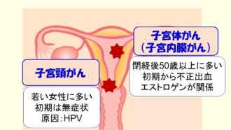 ブログ 子宮頸がん 初期症状
