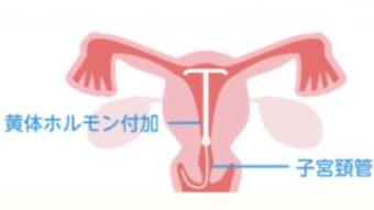 閉経 後 避妊 【月曜】 閉経後の性生活 - 2010年7月